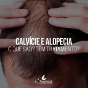 calvicie-alopecia